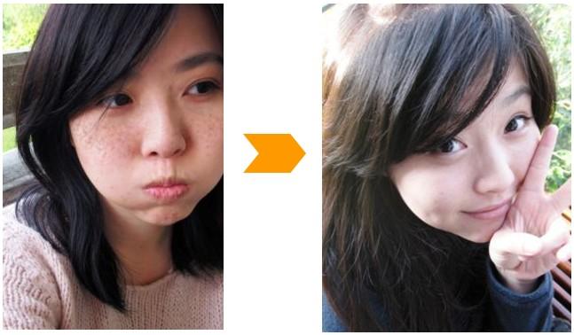 我使用中药祛斑面膜前后的对比照片