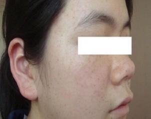 春雪使用中药祛斑产品1个月的照片